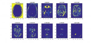 تقسیم بندی تصویر در تشخیص تومور